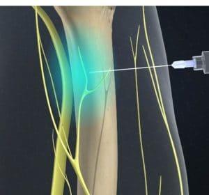 animated representation of nerve blocking